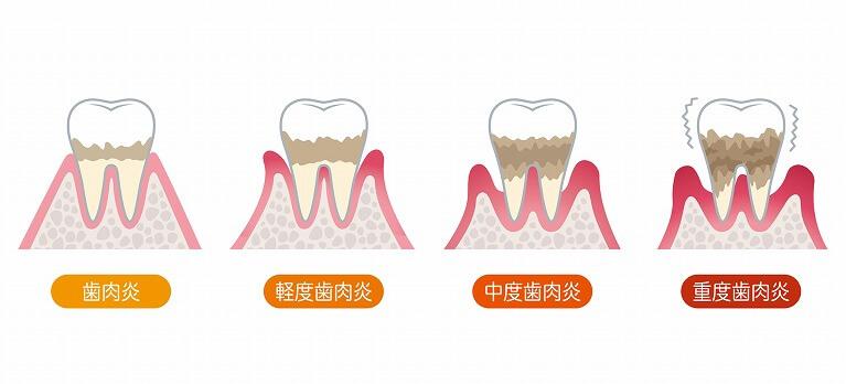 歯周病の進行状態